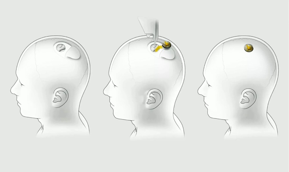 Objetivo da Neuralink é criar um chip que pode ser implantado no crânio para aprimorar as capacidades mentais do usuário — Foto: Divulgação/Neuralink