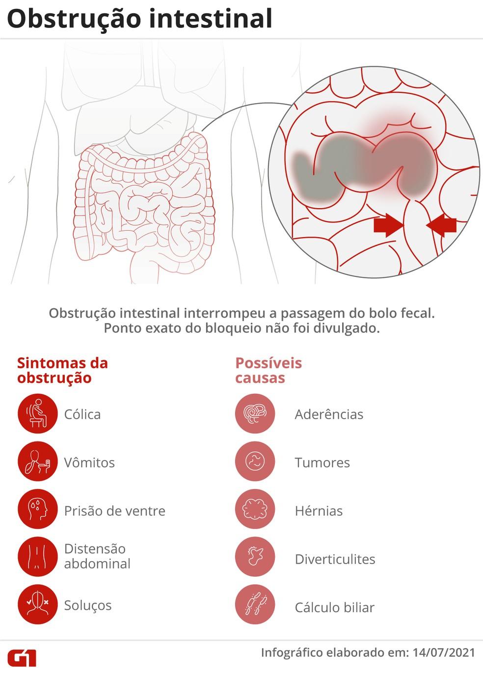 Obstrução intestinal: entenda o quadro de Bolsonaro — Foto: Arte/G1