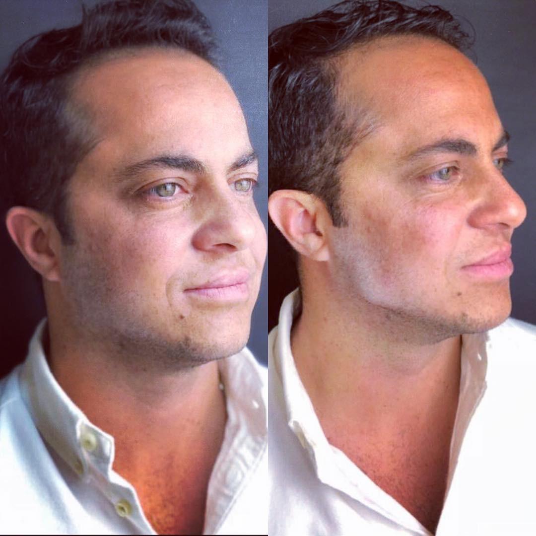 Thammy Miranda mostra antes e depois de procedimento estético (Foto: Reprodução)