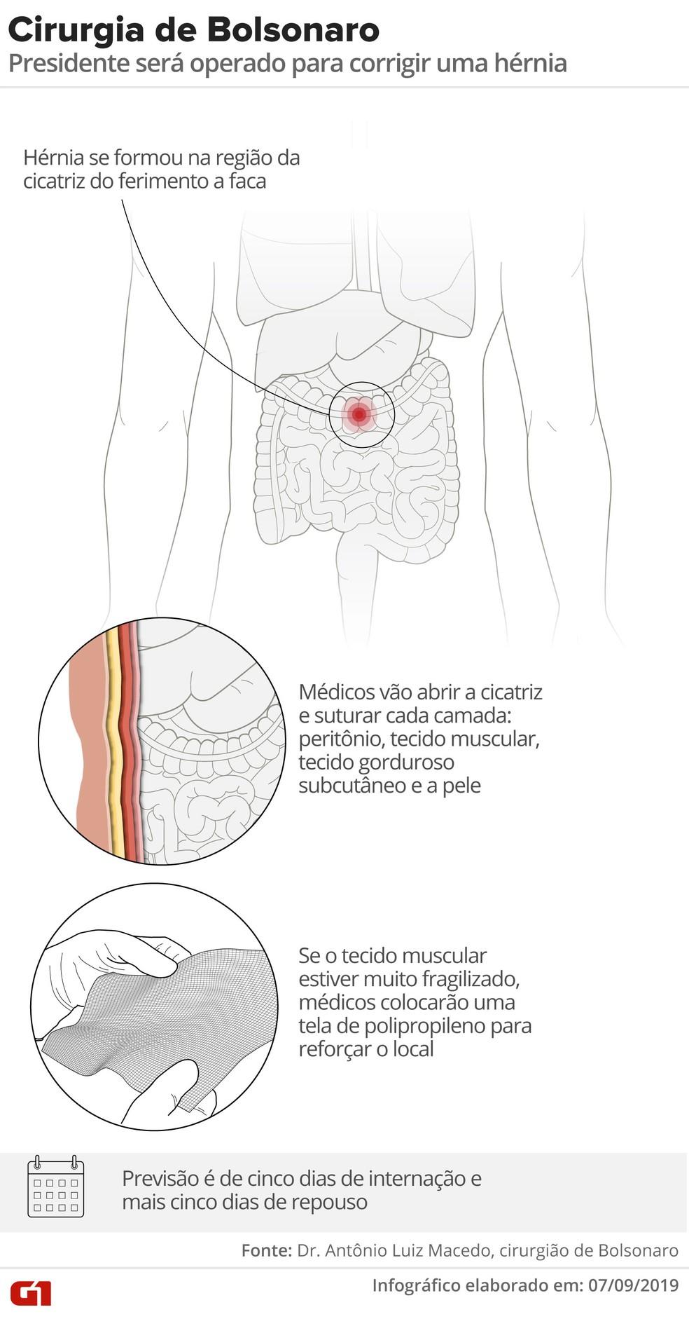 Veja como será a nova cirurgia de Bolsonaro — Foto: Roberta Jaworski/Editoria de Arte/G1