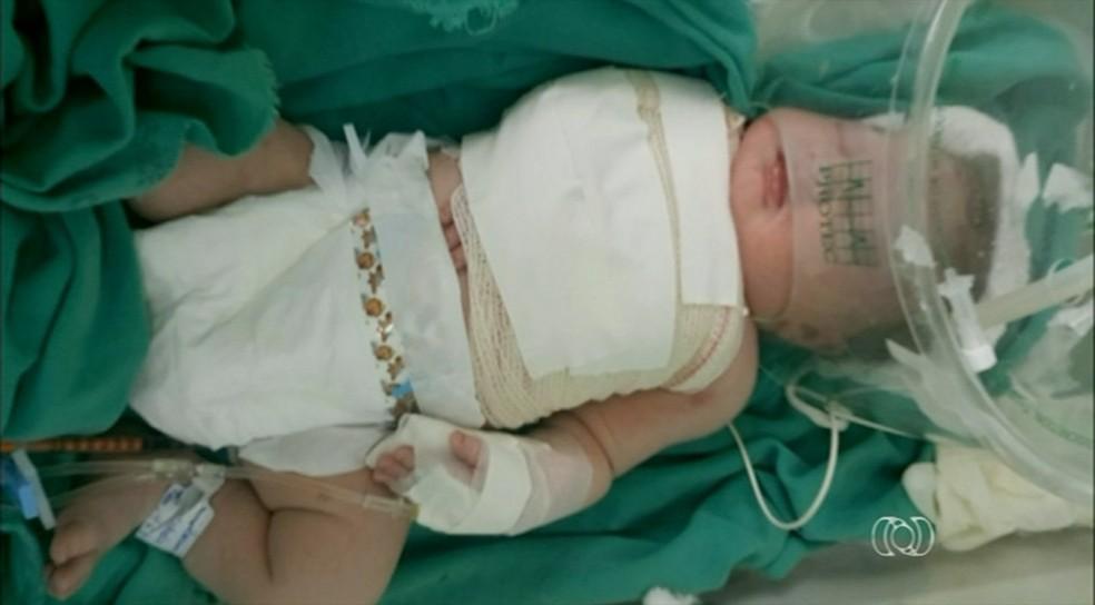 Bebe ainda está internado no hospital (Foto: Reprodução/TV Anhanguera)