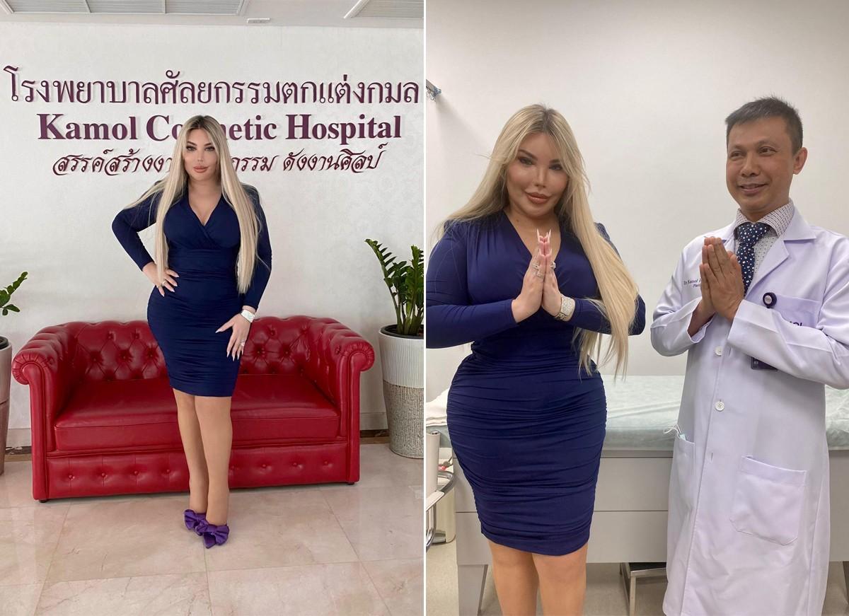Jessica Alves fez a mudança de sexo com o famoso Dr. Kamol Pansritum M.D. no Kamol Cosmetic Hospital (Foto: Reprodução / Instagram)