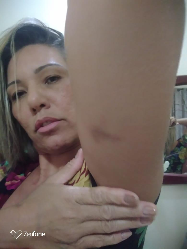 'Me agarrou pelos braços e começou a me puxar', diz mulher que denuncia agressão de motorista da Uber em BH