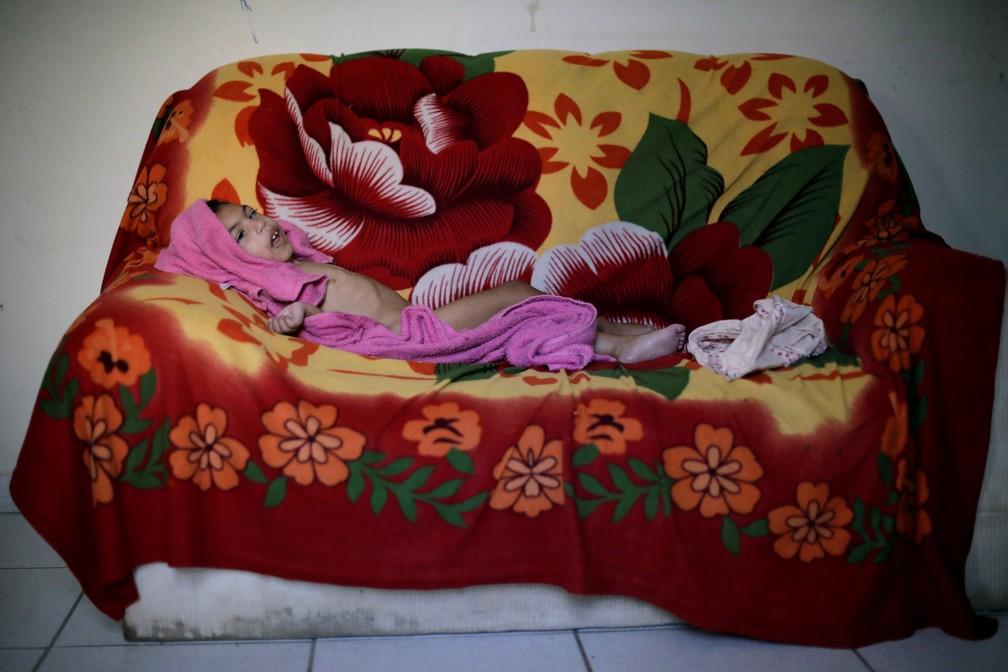 Luana Vieira, que tem dois anos de idade e nasceu com microcefalia, deitada no sofá após tomar banho, em casa, em Olinda — Foto: Ueslei Marcelino/Reuters
