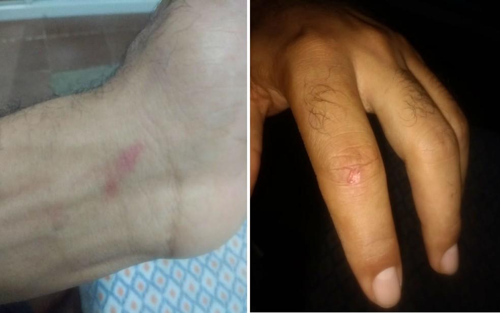 Fotos mostram marcas das agressões — Foto: Arquivo Pessoal