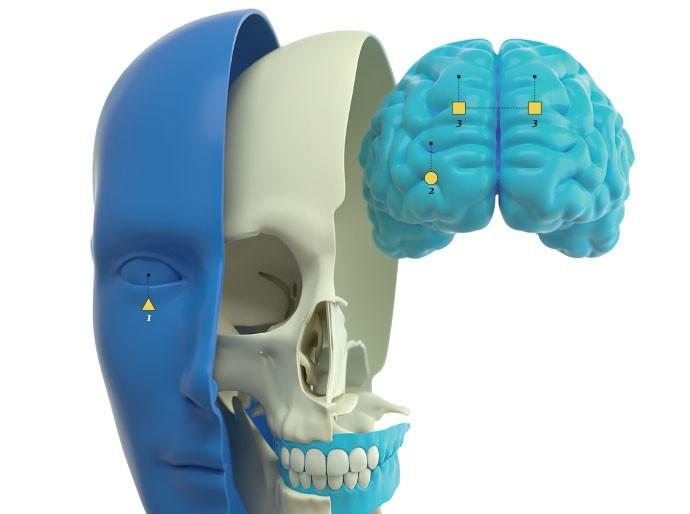 Identifique a região e descubra qual tipo de dor de cabeça você tem  (Foto: OTAVIO SILVEIRA)