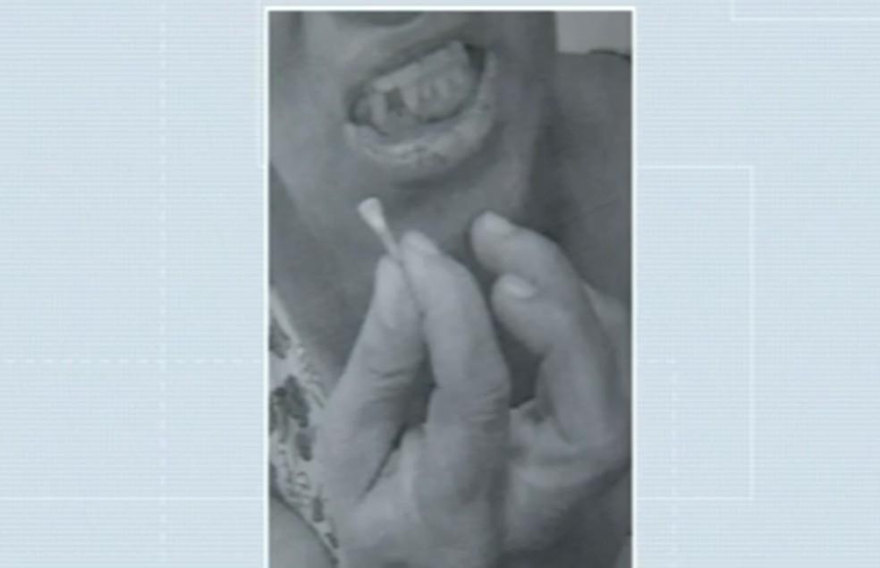 Mulher teve o dente arrancado após socos na boca (Foto: Divulgação)