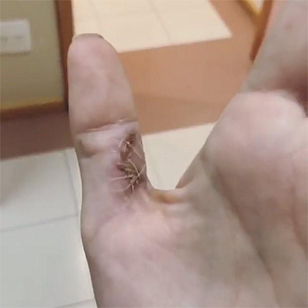 Mão esquerda de Tammy di Calafiori (Foto: Reprodução/Instagram)