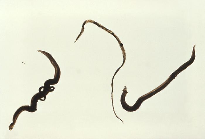 Formas adultas do Schistosoma mansoni. À esquerda, um par de macho e fêmea; ao meio, uma fêmea; à direita, um macho (Foto: Wikipedia Commons)