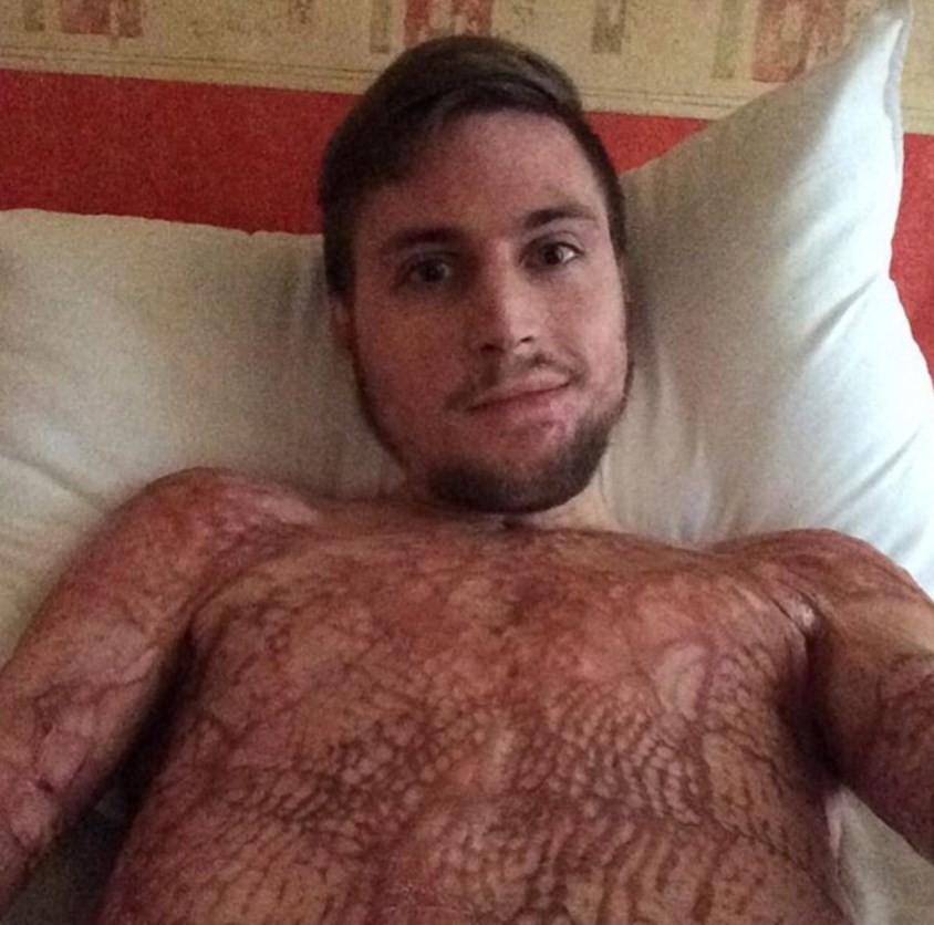 Freddy Beeson teve 80% do corpo queimados