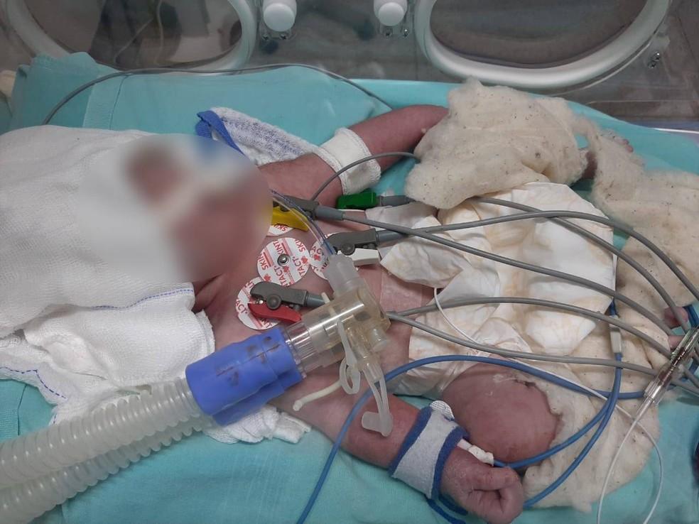 Bebê teve couro cabeludo arrancado durante o parto  — Foto: Arquivo Pessoal