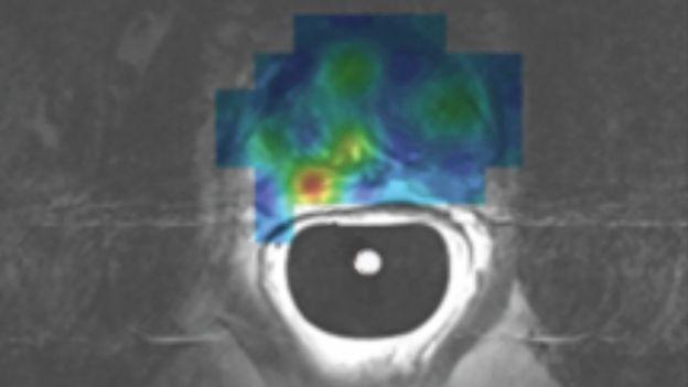Imagem de uma ressonância magnética hiperpolarizada para detecção de câncer de próstata (Foto: RAFAT CHOWDHURY)