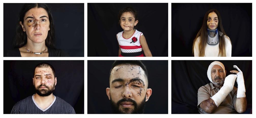Combinação de fotos tiradas entre 13 e 16 de agosto de 2020 mostra pessoas feridas durante a explosão do dia 4 de agosto que matou mais de 170 pessoas, feriu milhares e causou ampla destruição, em Beirute, no Líbano — Foto: Hassan Ammar/AP