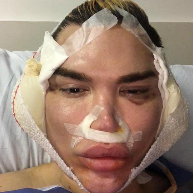 Rodrigo Alves, o Ken Humano, se submete a mais um lifting facial (Foto: Divulgação)