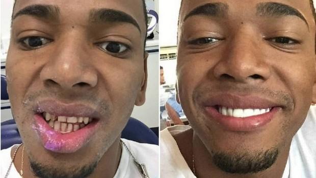 Nego do Borel de sorriso novo (Foto: Reprodução/Instagram)