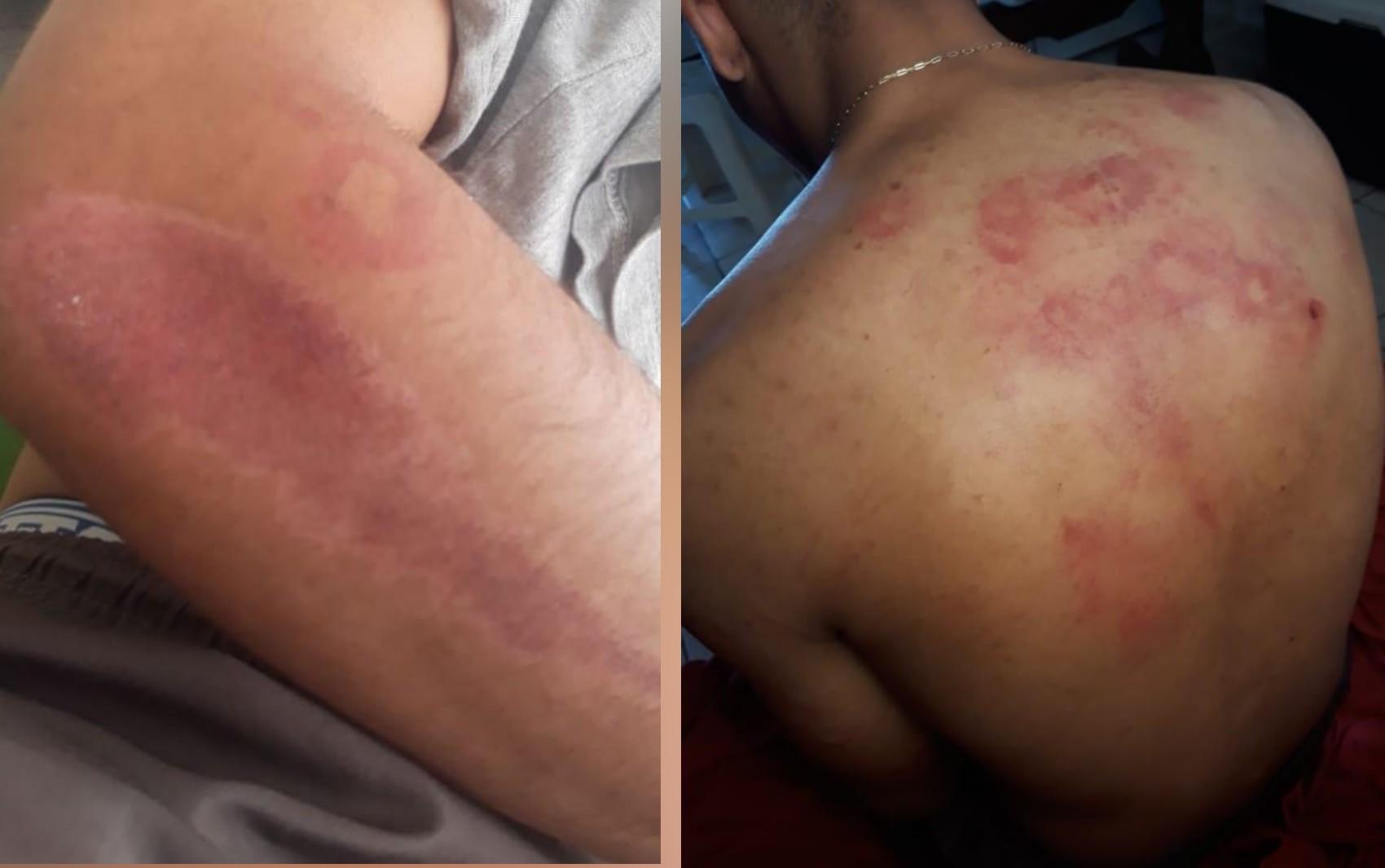 Jovem denuncia que foi agredido por PM até cassetete quebrar, em Goiás