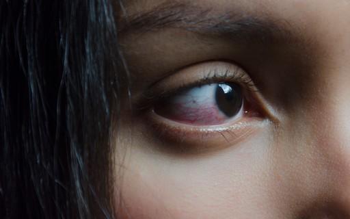 Olhos vermelhos podem ser sinal de coronavírus, afirmam especialistas