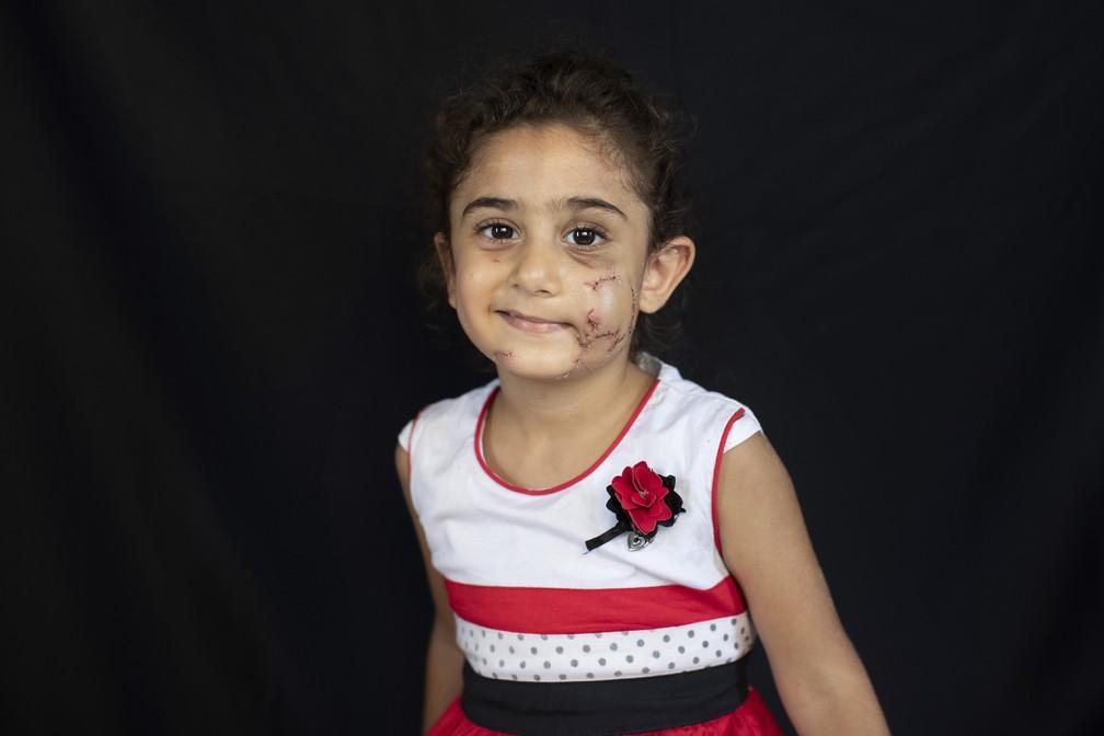 Yara Saeid, 4, se feriu no apartamento dos pais durante a explosão do dia 4 de agosto em Beirute,  Líbano — Foto: Hassan Ammar/AP