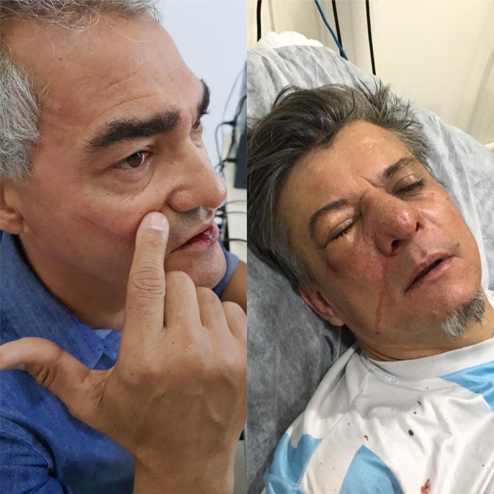 Vereador Amauri Cardoso (PSDB) e deputado federal Boca Aberta (PROS) brigam no Centro de Londrina — Foto: Arquivo pessoal e divulgação