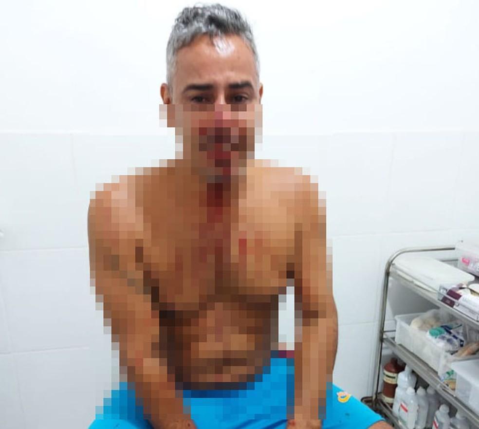 Casal acusa empresário de agressão durante retirada de 'barricada' em praia de Maraú — Foto: Arquivo pessoal