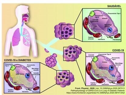 Pesquisadores da UFU publicam estudo sobre o efeito da Covid-19 nos pulmões de pacientes diabéticos