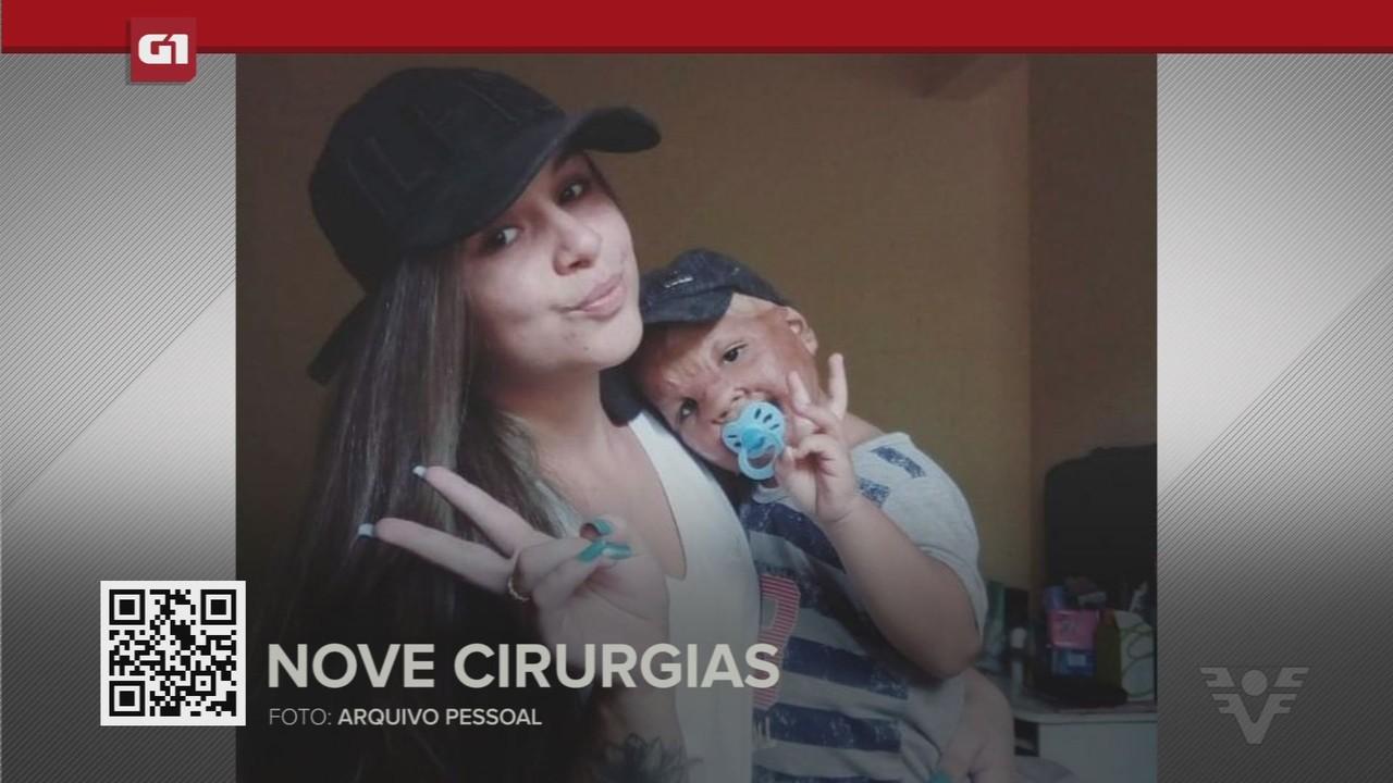 G1 em 1 minuto - Santos: Menino com 100% do rosto queimado aguarda por nova cirurgia