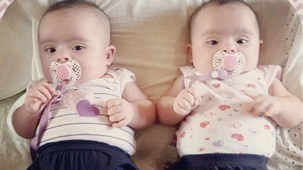 Exame feito quando Helena e Heloísa tinham poucas semanas de vida apontou que as duas têm síndrome de Down — Foto: Arquivo Pessoal