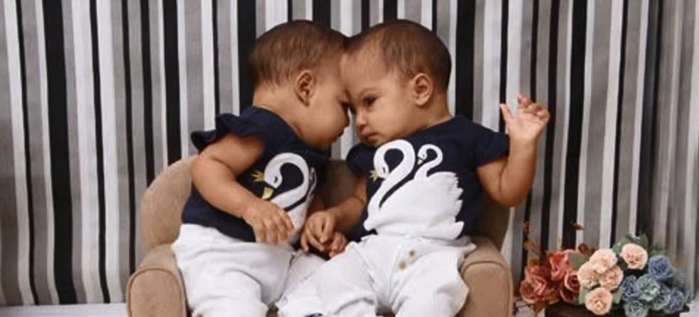 Gêmeas siamesas separadas por cirurgia no DF — Foto:  Foto: Arquivo pessoal