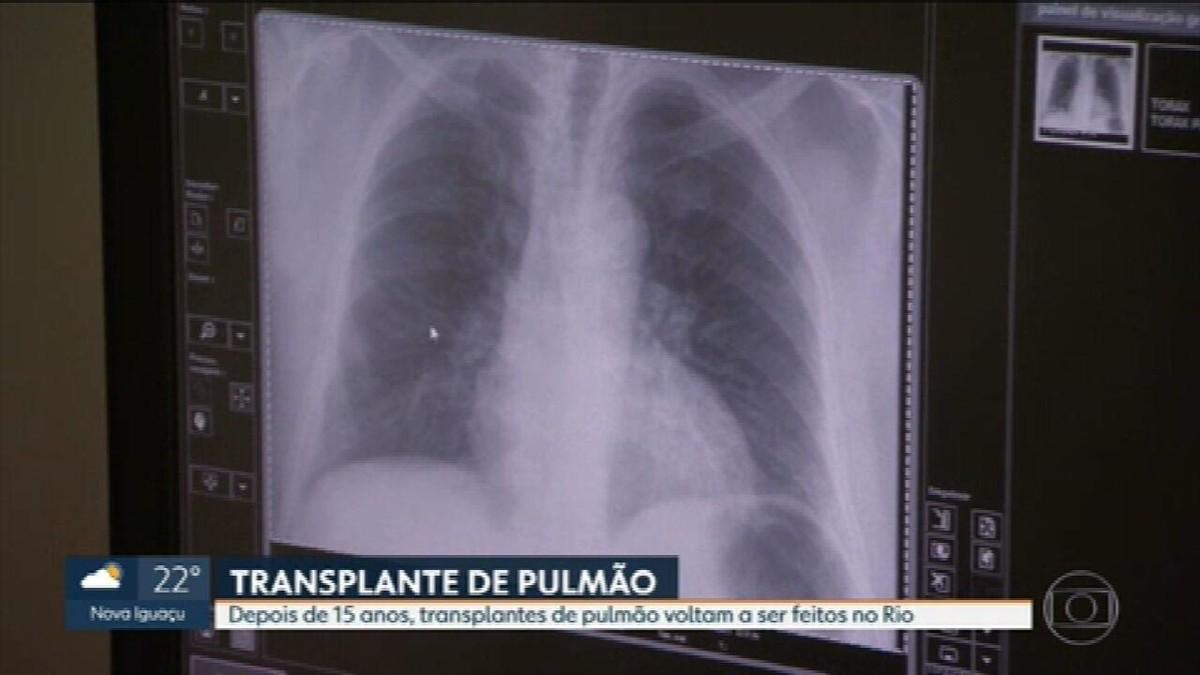 Rio volta a fazer transplante de pulmão após 15 anos de interrupção do serviço