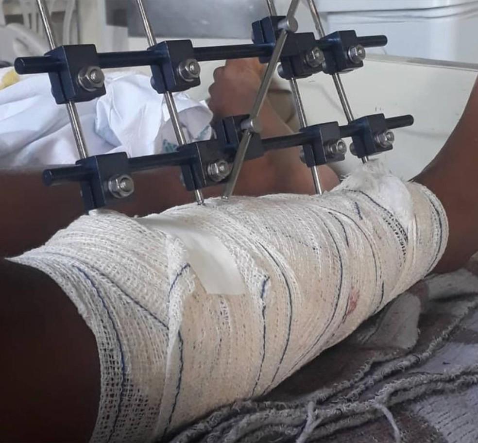 Menina de onze anos foi baleada por policial militar na perna durante operação em BH — Foto: Cristiane Pereira/Arquivo pessoal