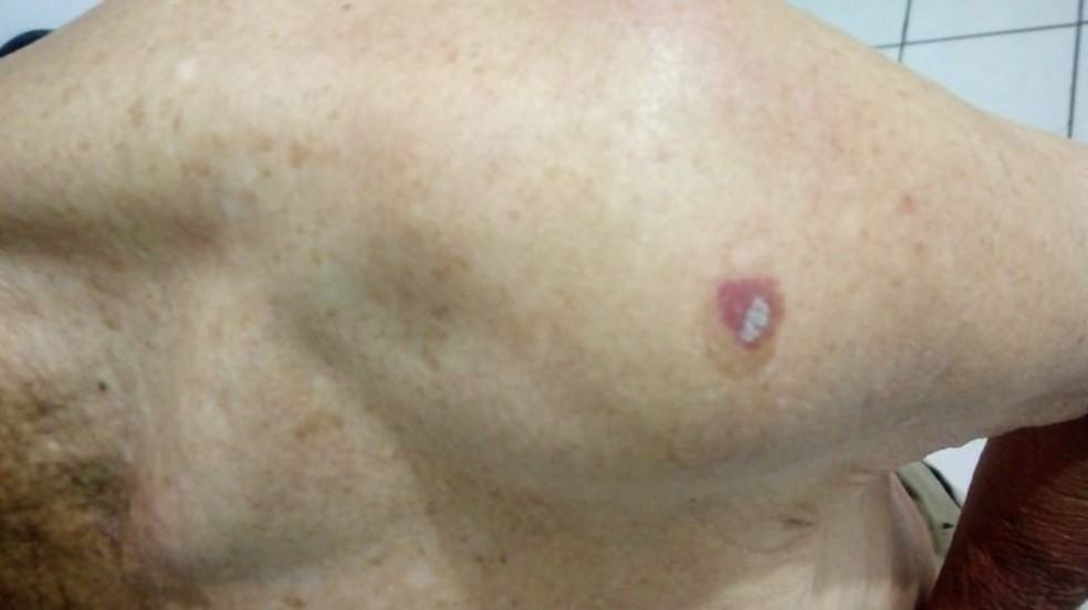 Homem também teve queimaduras provocadas por cigarros (Foto: Marília Notícia)