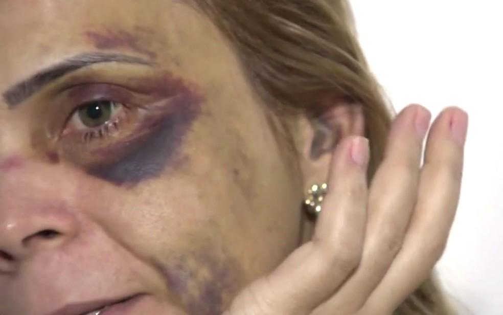 Com hematomas pelo rosto, ex-namorada do humorista Renato Fechine denuncia agressões na Bahia (Foto: Imagem/TV Bahia)