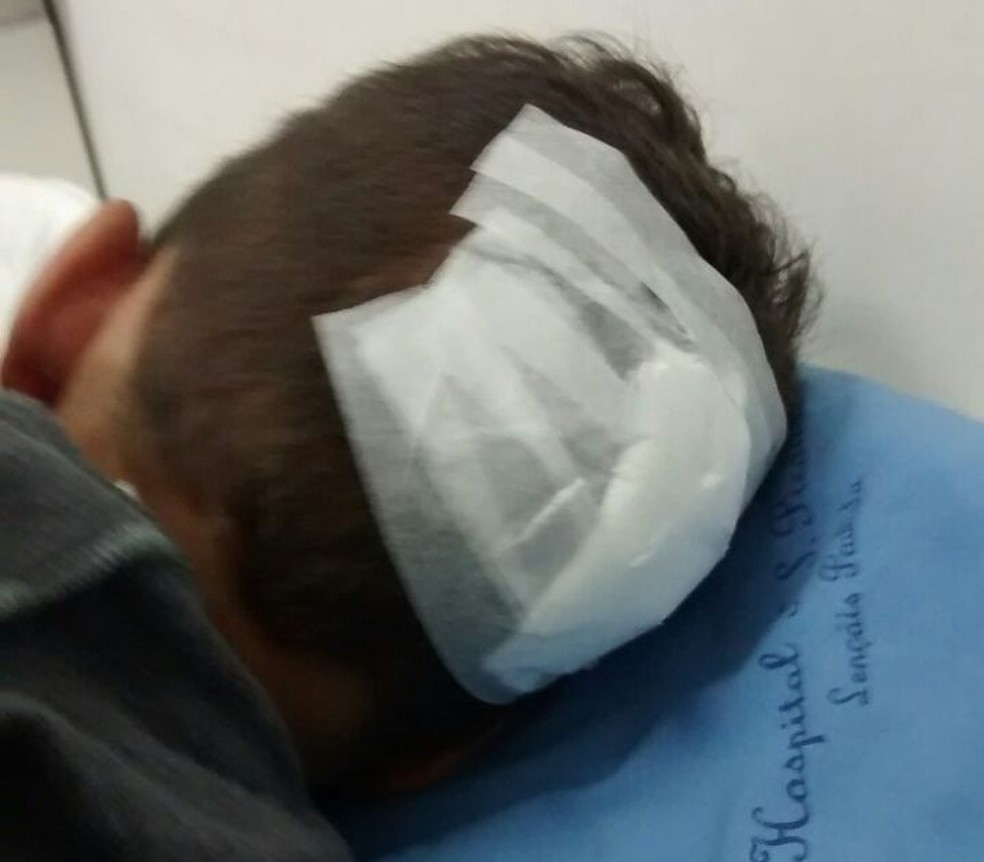 Menino precisou levar 10 pontos na cabeça para fechar corte  (Foto: Jornal Sabadão do Povo / Divulgação )