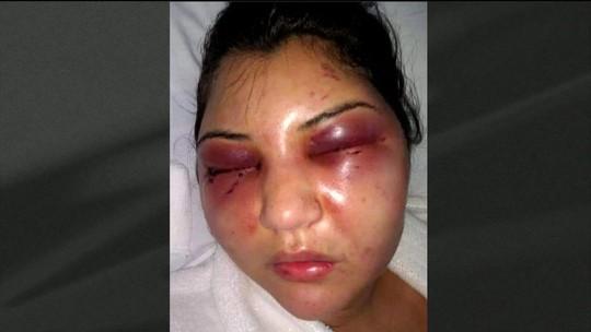 Agressor de mulher no RJ é indiciado por tentativa de feminicídio