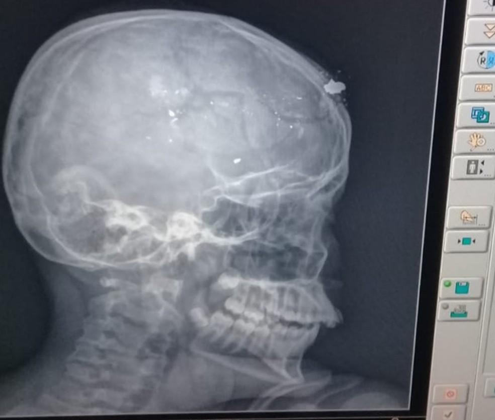 Raio-x do crânio da vítima com fragmentos de bala na testa — Foto: Divulgação/Polícia Civil