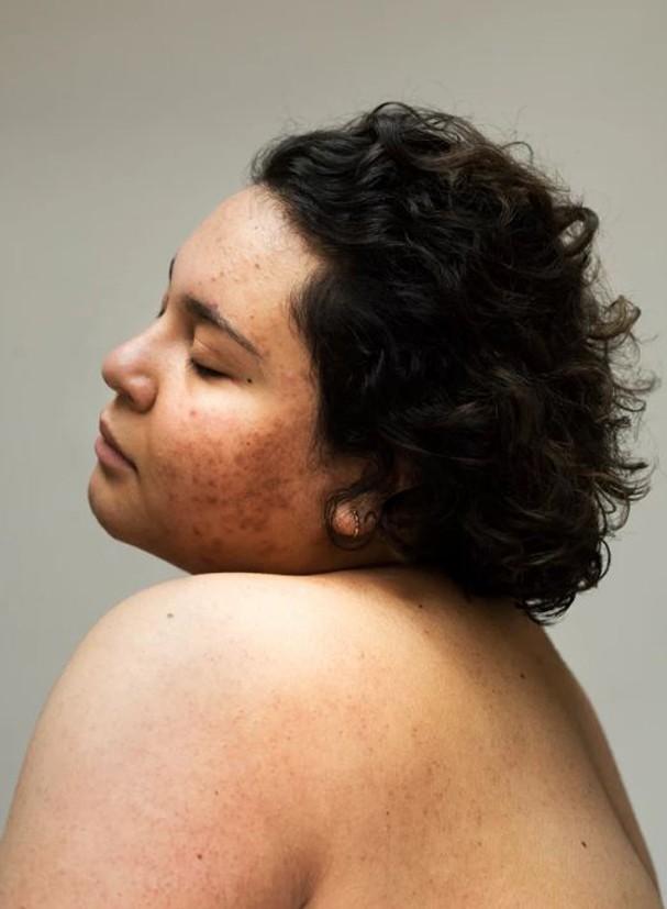 Sophie Harris-Taylor se inspirou em sua própria experiência com a acne (Foto: Sophie Harris-Taylor/Reprodução)