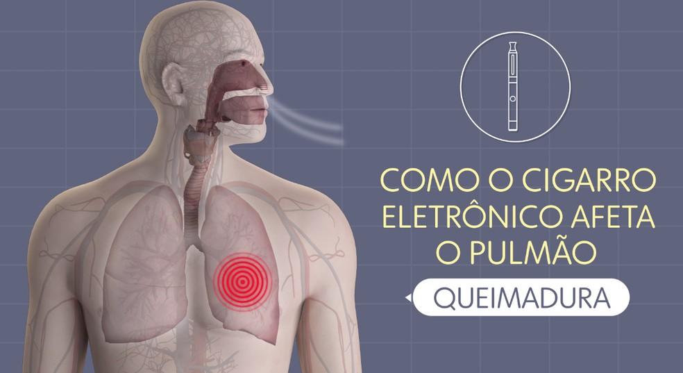 Cigarro eletrônico queima o pulmão — Foto: Arte/TV Globo