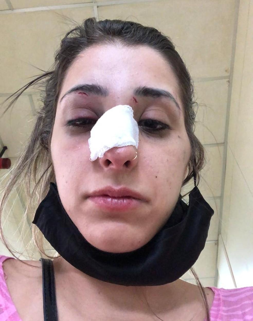 Jovem quebrou o nariz após agressões sofridas pelo ex-namorado  — Foto: Arquivo pessoal