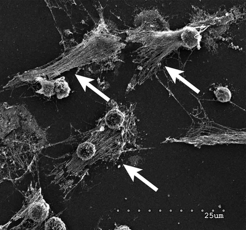 Imagem mostra as armadilhas extracelulares de neutrófilos nos pulmões. Pesquisadores querem descobrir se o mesmo mecanismo é ativado em casos de Covid-19 e, assim, desenvolver tratamento para a doença. — Foto: EGEBLAD LAB/CSHL