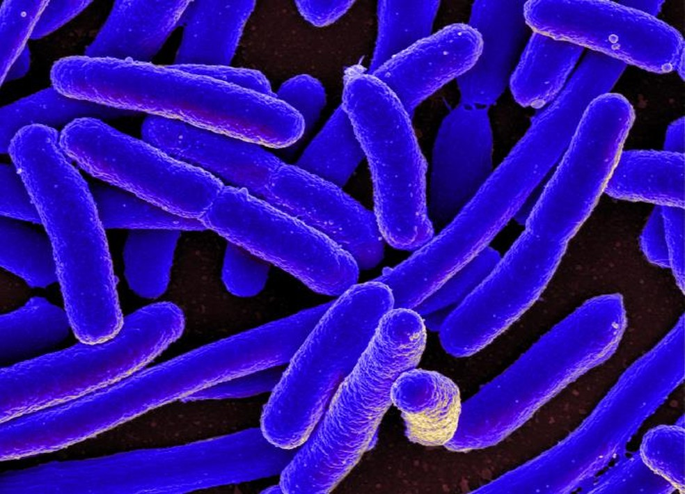 Escherichia coli, bactéria comum no organismo humano e normalmente inofensiva  (Foto: NIH - National Institute of Health)