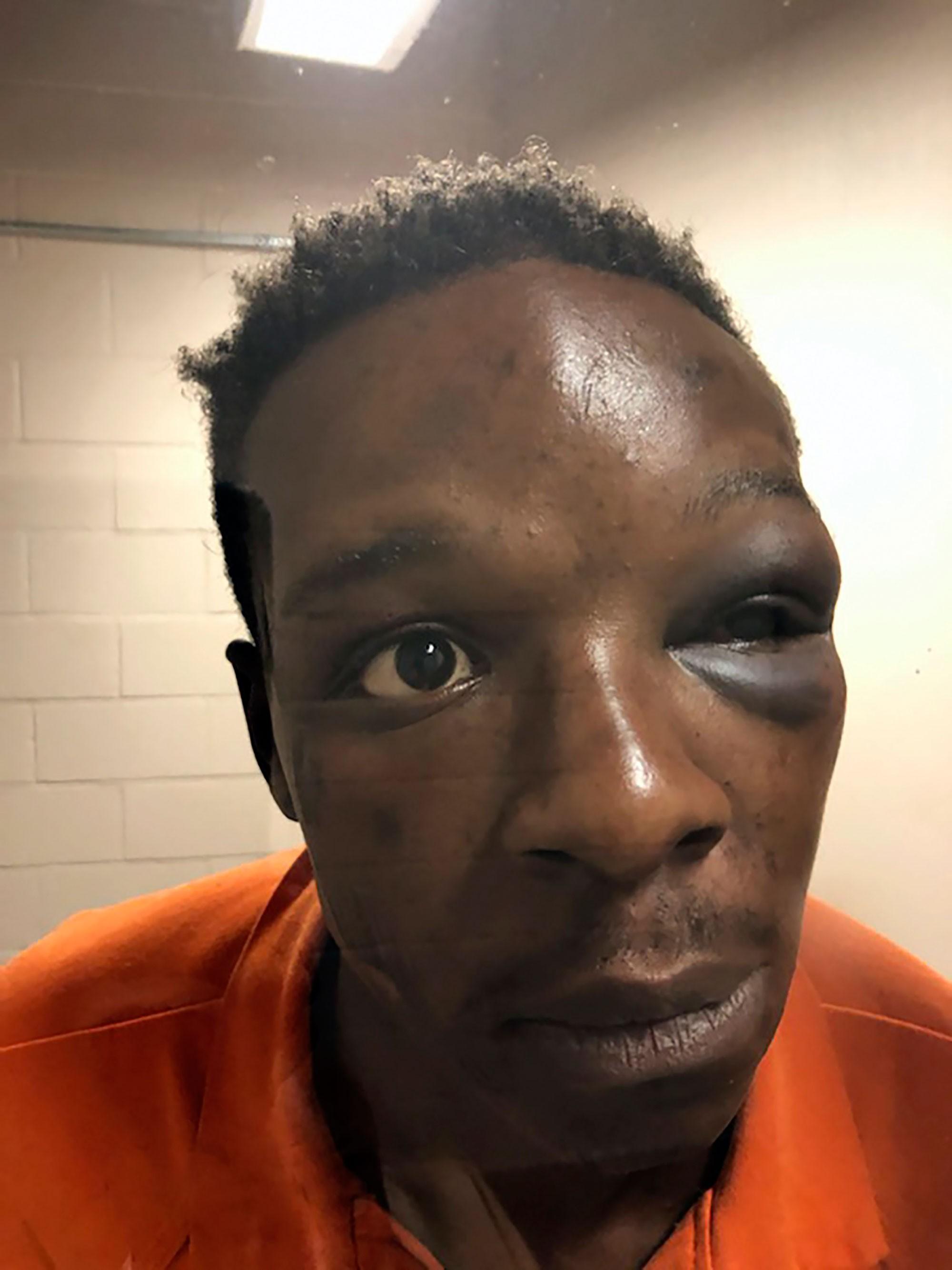 Policial é demitido após dar socos em homem negro nos EUA; VÍDEO mostra agressão
