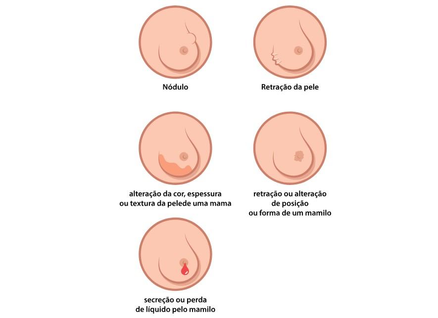 Possíveis sinais de câncer de mama (Foto: Wikimedia/Raphseck)