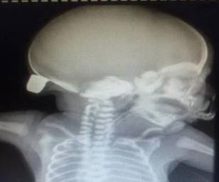 Raio-x mostra bala na nuca de Bernardo, atingido na barriga da mãe