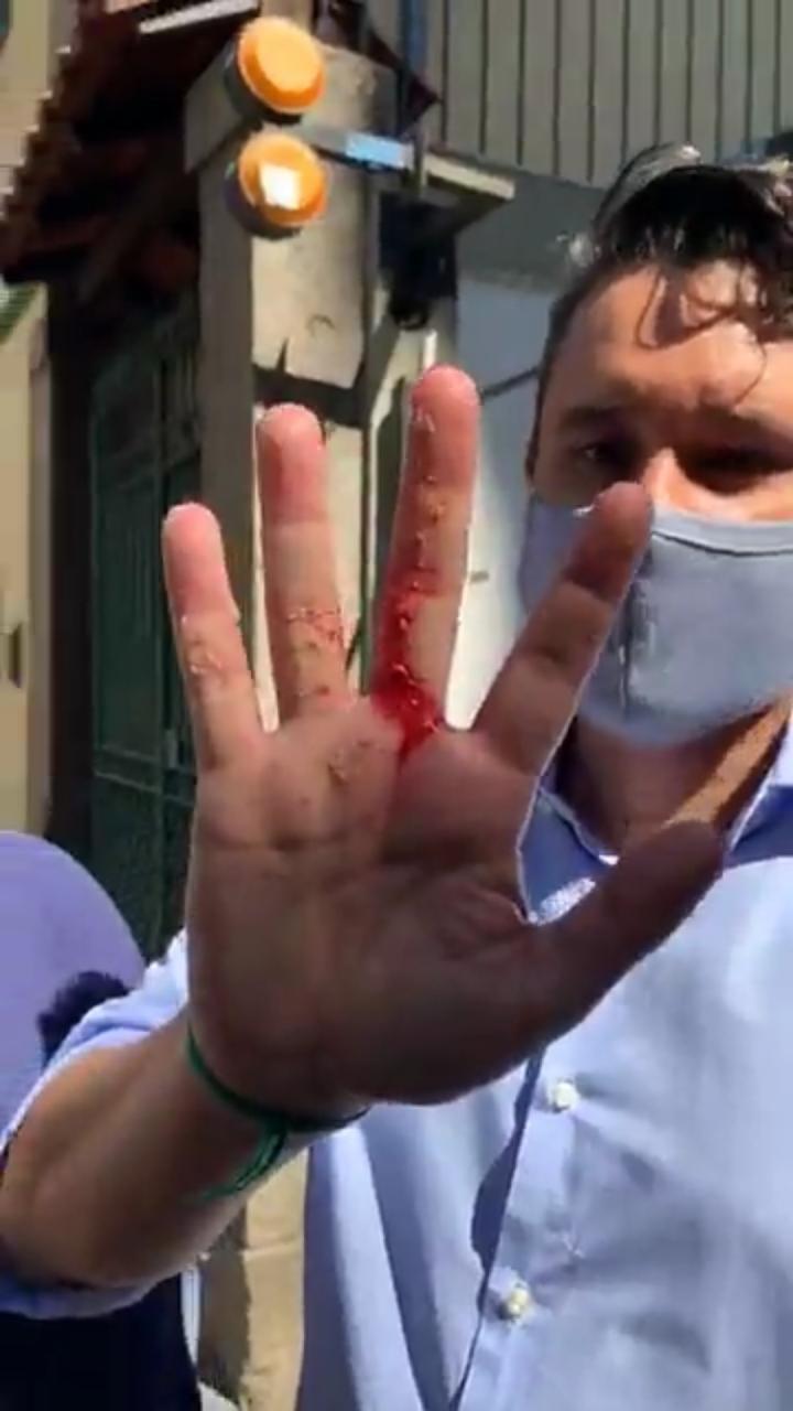 Presidente da comissão de defesa dos animais do Rio, Luiz Carlos Ramos Filho foi mordido por filhote de pitbull