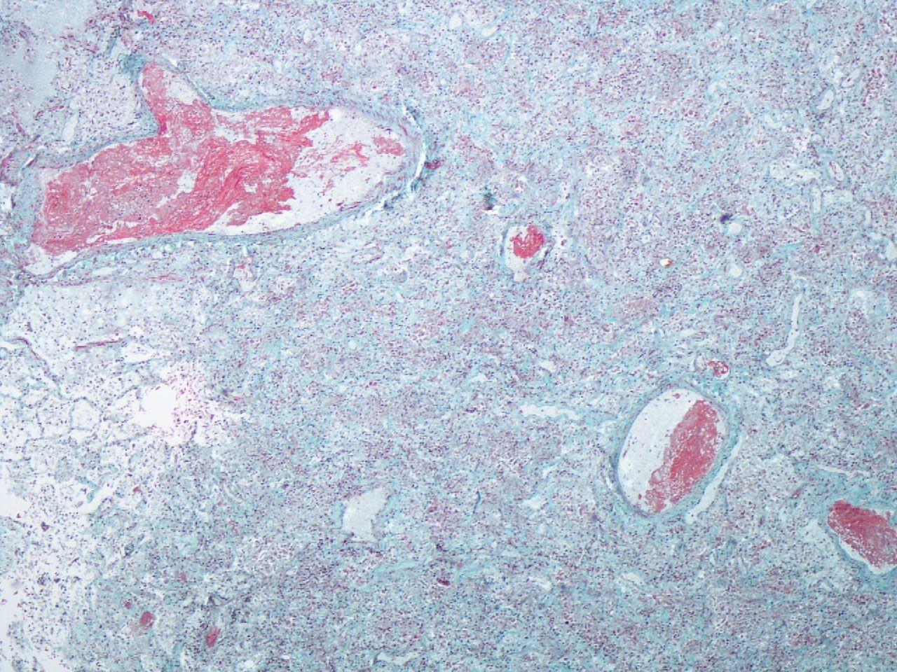 Exames pulmonares mostram a presença de danos causados pelo coronavírus 27 dias após a morte do paciente (Foto: BMJ Journals)