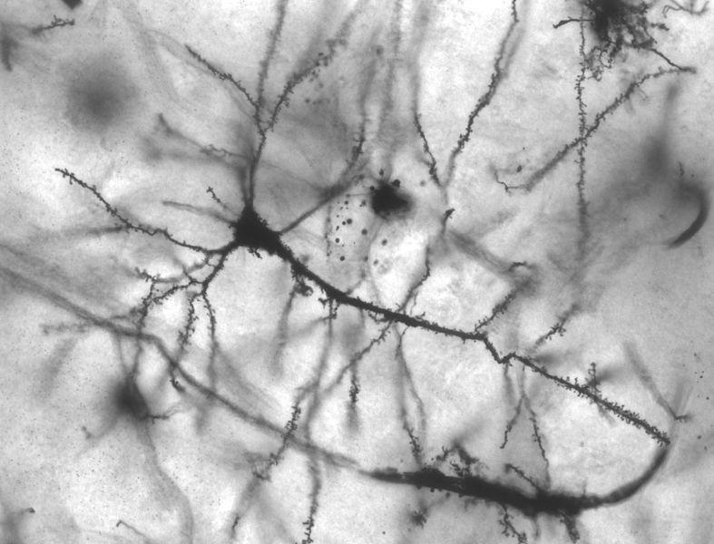 Rede de neurônios (Foto: Wikimedia Commons)