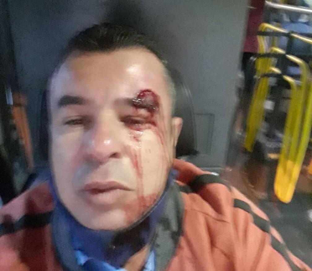 Motorista de ônibus é agredido por passageiro que foi cobrado por estar sem máscara. — Foto: Arquivo pessoal
