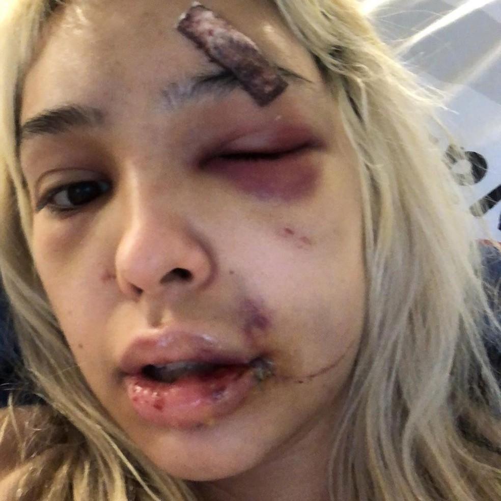 Rebeca Kodaira, brasileira de 22 anos, diz ter sido agredida pelo namorado na Alemanha — Foto: Reprodução / Facebook