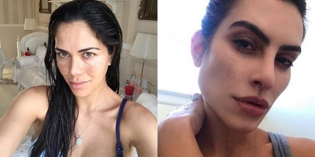 Daniela Albuquerque e Cleo Pires sofrem de melasma (Foto: Reprodução/Instagram)