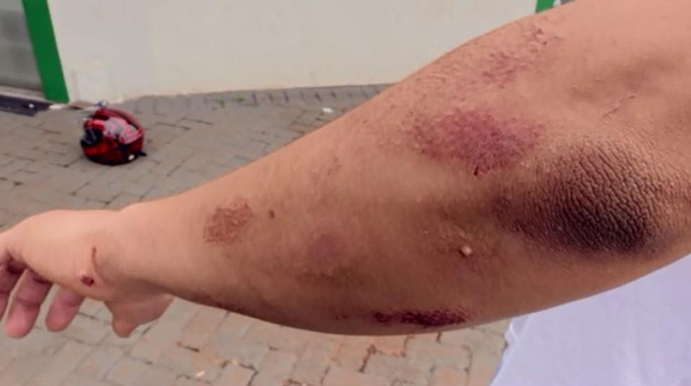 Motociclista arrastado após ser atingido por carro em Maringá sofreu apenas escoriações — Foto: Reprodução/RPC